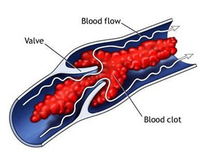 DVT_Diagram